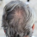 Man with hair thinning